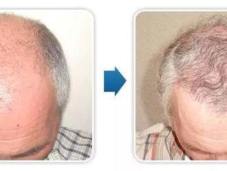 Przeszczep włosów - transplatacja włosów-656747