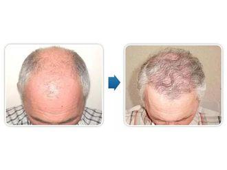 Przeszczep włosów-685196