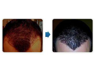 Przeszczep włosów-685198