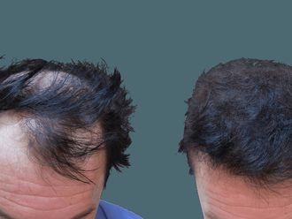 Przeszczep włosów-740576