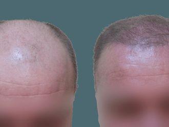 Przeszczep włosów-740577