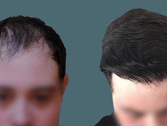 Przeszczep włosów-740578