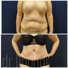 Plastyka brzucha - przed i po