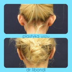 Korekcja uszu - przed i po