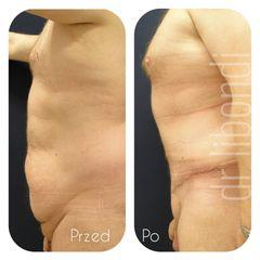 Plastyka brzucha męska z liposukcją - przed i po