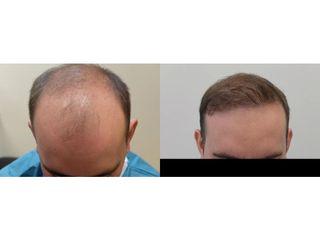 Przeszczep włosów - przed i po