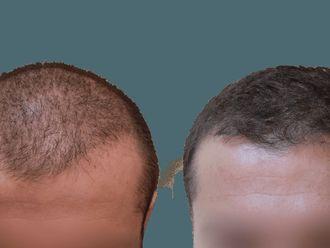 Przeszczep włosów-740573