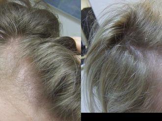 Mezoterapia igłowa - odmładzanie twarzy, szyi, dekoltu, dłoni-657925