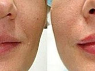 Powiększanie ust (Augmentacja)-652710
