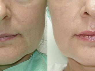 Powiększanie ust (Augmentacja)-652716