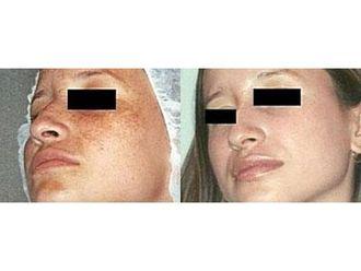 Laserowe zabiegi dermatologii estetycznej-691254