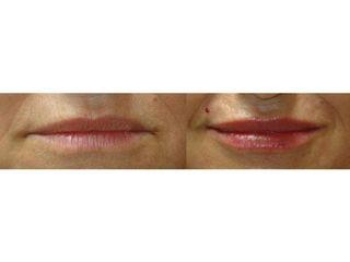 Powiększanie ust - przed i po
