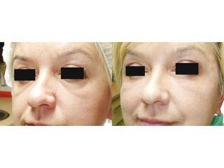 Usuwanie worków pod oczami - przed i po