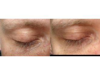 Laserowe usuwanie zmian skórnych-691277