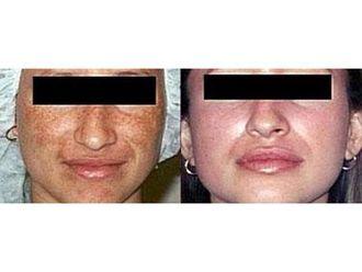 Laserowe zabiegi dermatologii estetycznej-691293