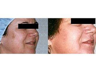 Laserowe usuwanie zmian skórnych-691294