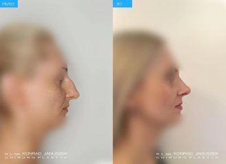 Operacja nosa: przed i po