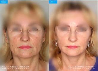 Lifting twarzy: przed i po