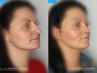 Korekcja nosa (Operacja nosa)-659739