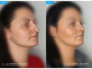 Operacja plastyczna nosa przed i po