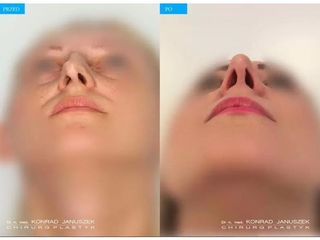 Korekcja nosa - przed i po