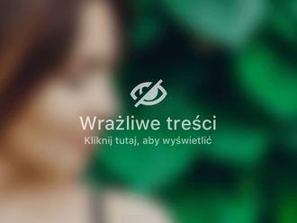 Plastyka brzucha-685179