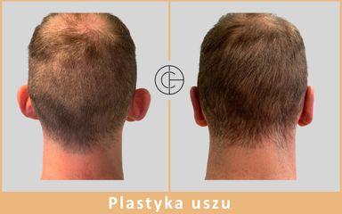Plastyka uszu - dr n. med. Michał Chalcarz