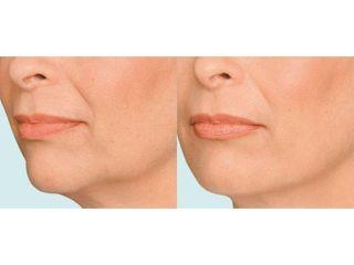 Modelowanie owalu twarzy - przed i po
