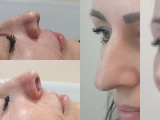 Korekta nosa kwasem hialuronowym-660125