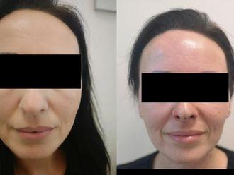 Korekta nosa kwasem hialuronowym - 660130