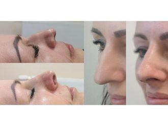 Chirurgia plastyczna-688389