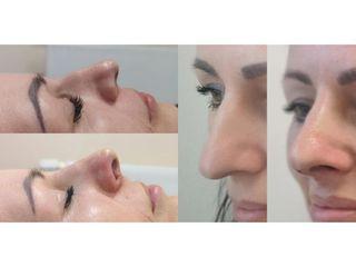 Korekta nosa za pomocą nici Aptos - przed i po