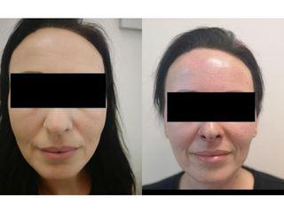 Korekta nosa nićmi liftingującymi Aptos - przed i po