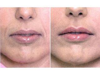 Przed i po - Powiększanie ust kwasem hialuronowym