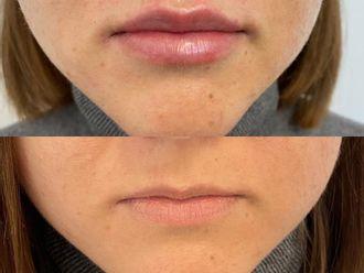 Powiększanie ust kwasem hialuronowym-737689