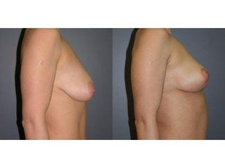 Mastopeksja - przed i po