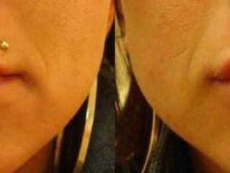 Powiększanie ust-654409