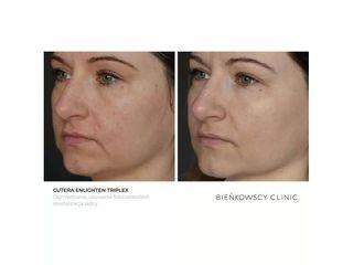 Odmładzanie, usuwanie foto uszkodzeń, rewitalizacja skóry