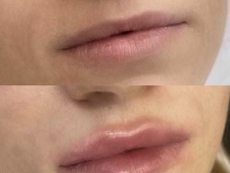 Powiększanie ust kwasem hialuronowym-738355