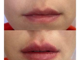 Powiększanie ust kwasem hialuronowym-738357