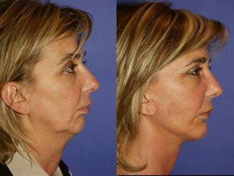 Lifting twarzy-651818