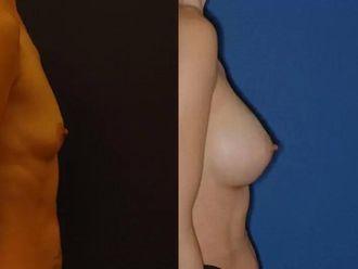 Powiększanie piersi własnym tłuszczem (komórki macierzyste) - 651830