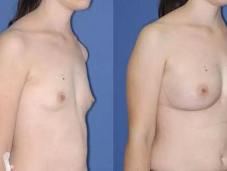 Powiększanie piersi własnym tłuszczem (komórki macierzyste) - 651831
