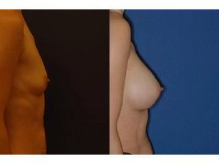 Powiększenie biustu własnym tłuszczem - przed i po