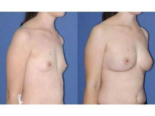 Powiększanie piersi za pomocą tkanki tłuszczowej - przed i po