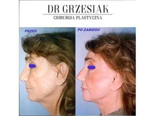 Lifting twarzy - efekty