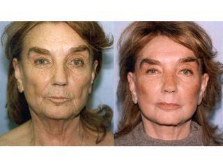 Facelift - przed i po