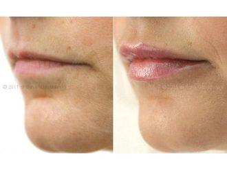 Powiększanie ust kwasem hialuronowym-800222