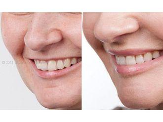Powiększanie ust kwasem hialuronowym-800226