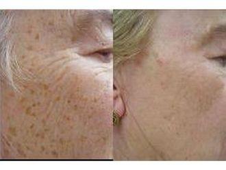 Laserowe usuwanie zmian skórnych-691314